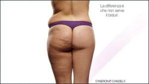 rimodellamento-del-corpo-centro-medico-estetico-lariano-como