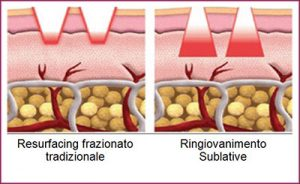 radiofrequenza-frazionale-acne-centro-medico-estetico-lariano-como