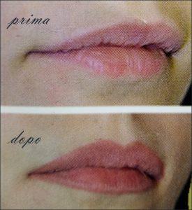 trucco-semipermanente-labbra-centro-medico-estetico-lariano-big