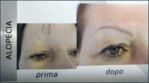 trucco-semipermanente-micropigmentazione-ricostruttiva-centro-medico-estetico-lariano-3