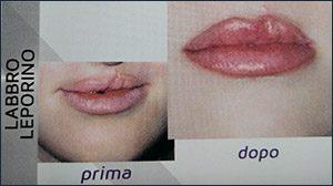 trucco-semipermanente-micropigmentazione-ricostruttiva-centro-medico-estetico-lariano