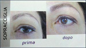 trucco-semipermanente-micropigmentazione-ricostruttiva-centro-medico-estetico-lariano-4