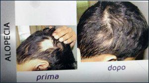 trucco-semipermanente-micropigmentazione-ricostruttiva-centro-medico-estetico-lariano-5