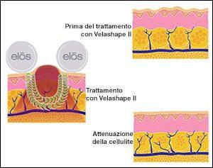 velashape-rimodellamento-del-corpo-centro-medico-estetico-lariano
