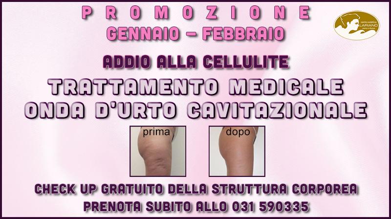 promozione-gennaio-febbraio-2018-onda-urto-cavitazionale-centro-medico-estetico-lariano