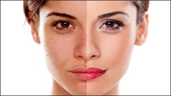 peeling-viso-centro-medico-estetico-lariano-como