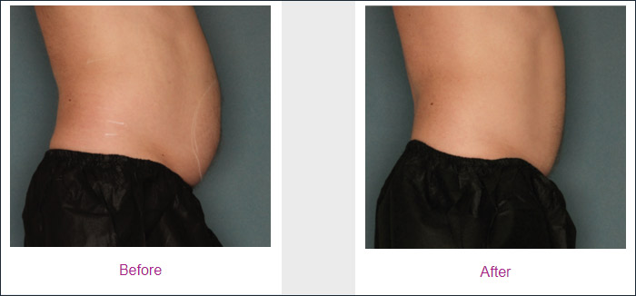 tecnologia-ultrashape-risultati-centro-medico-estetico-lariano-02
