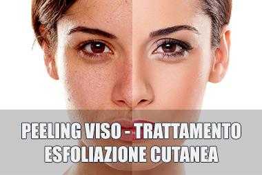 peeling-viso-trattamento-esfoliazione-cutanea-centro-estetico-lariano